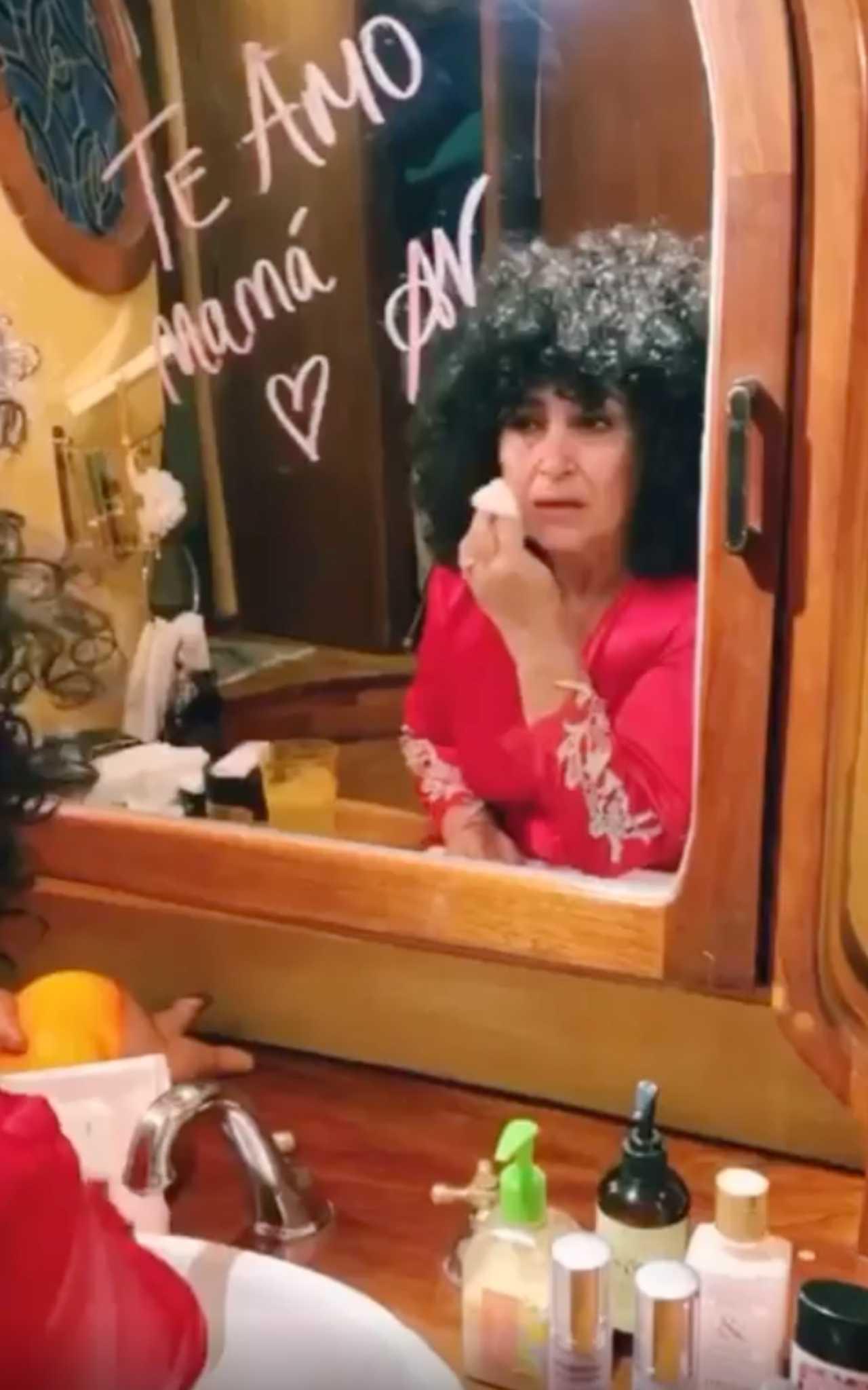 Amanda Miguel usa peluca tras perder su cabello