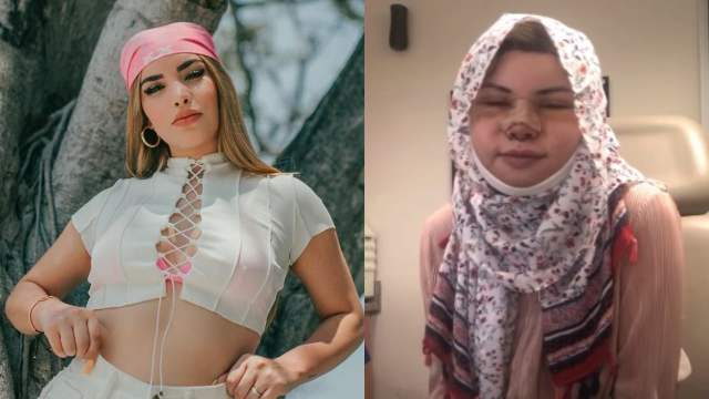 Youtuber cirugias parecerse Kimberly Loaiza