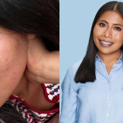 Yalitza Aparicio se muestra sin maquillaje y con manchitas