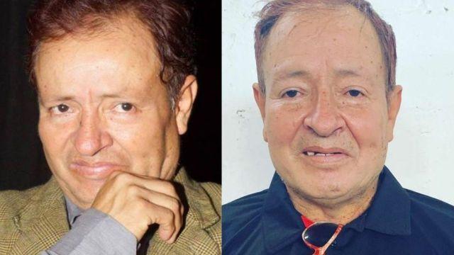 "Mánager de Sammy Pérez revela que empeoró: ""Está en la cuerda floja"""