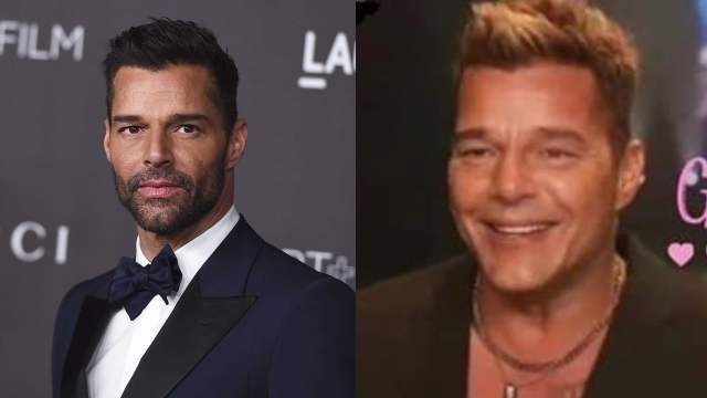 Ricky Martin reaparece nuevo rostro desfigurado