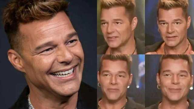 Aclaran qué pasó con el rostro hinchado de Ricky Martin