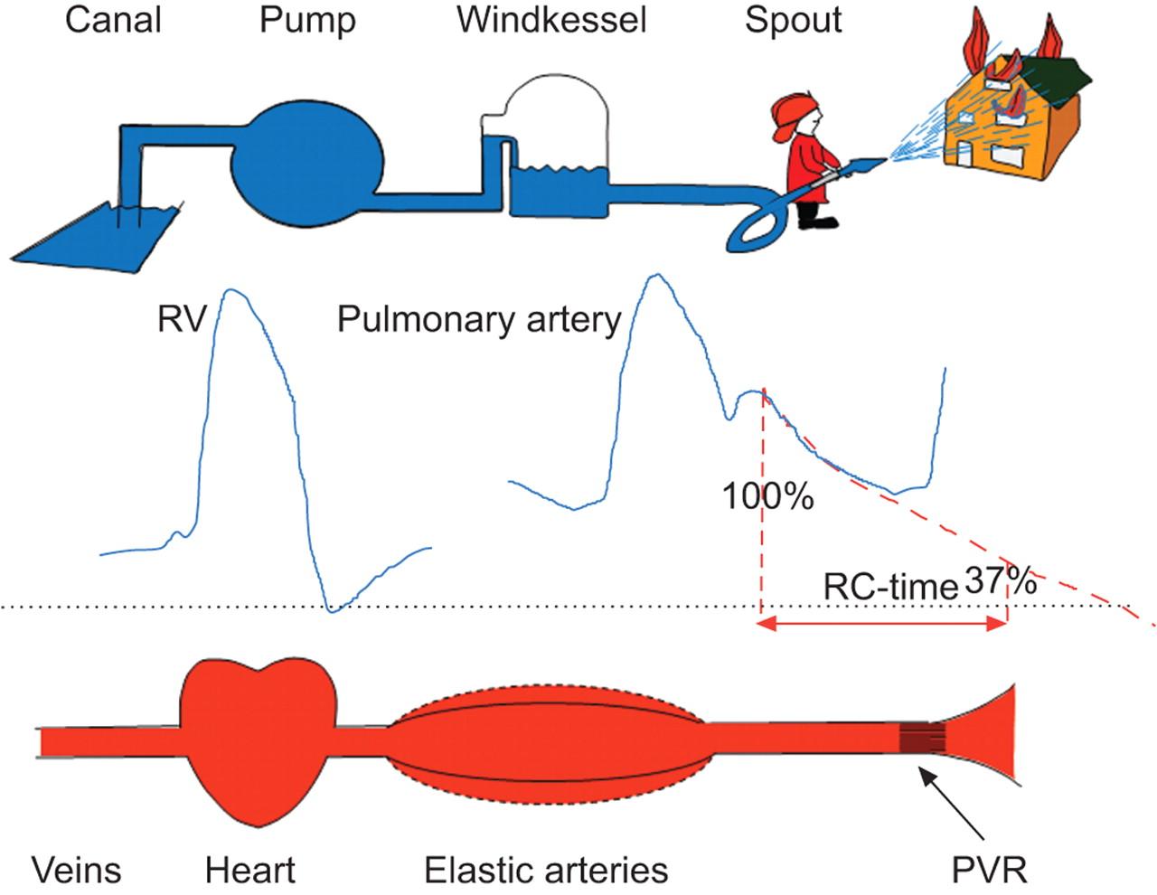 The arterial load in pulmonary hypertension  European Respiratory Society