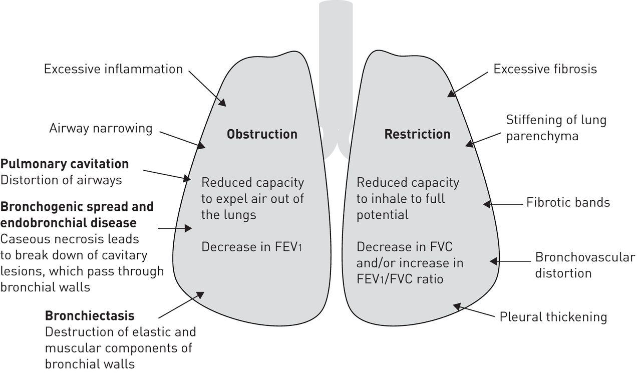 medium resolution of tb pneumonia diagram wiring diagram forward tb pneumonia diagram