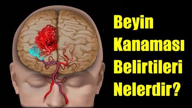 Beyin Kanamasının Belirtileri neler? Beyin Kanaması Nasıl Anlaşılır?