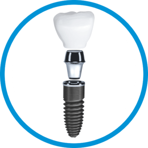 Affordable_Dental_Implants_In_Cancun