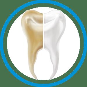 Dental_Whitening_price_Cancun