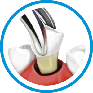 Tooth_extraction_Cancun