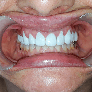 dental-Crowns-smile-makeover-2