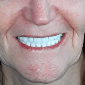 snaps1-3-snap-in-dentures-implants-cancun