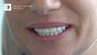 thumb smilemakeover 2