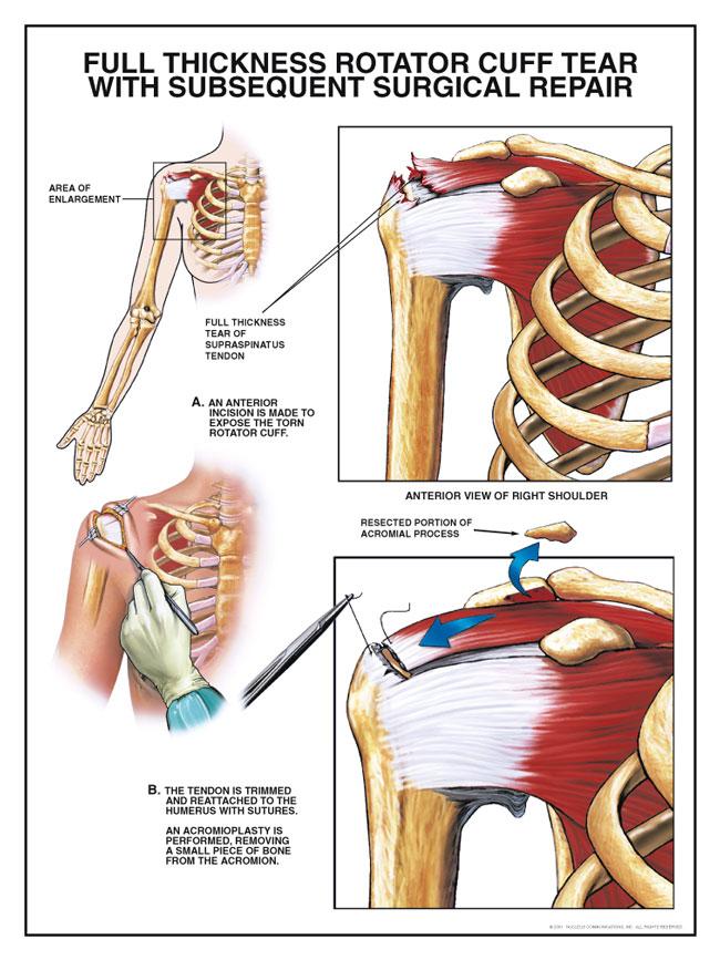 tendinitis de hombro tiempo de recuperación