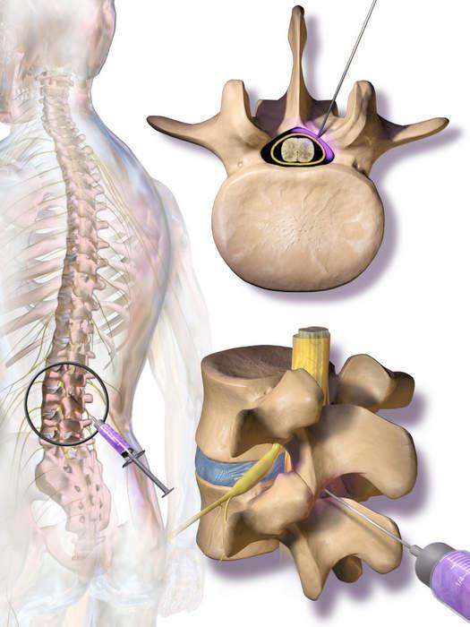 inyección epidural de esteroides