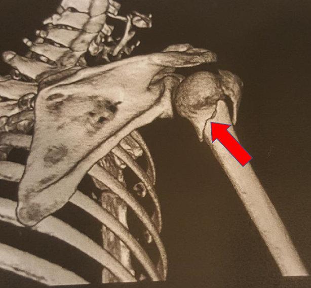 Resonancia magnética del brazo de la cliente (fractura del húmero proximal)