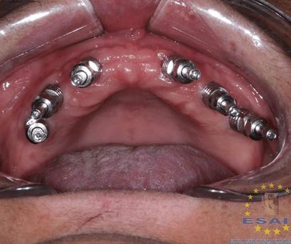 Esais, implantología avanzada