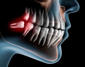 Cirugía Dental