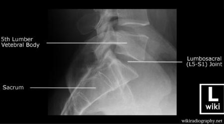 degenerative disc disease lower back pain L5 S1