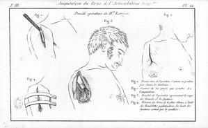 Amputation du bras selon Dominique Larrey