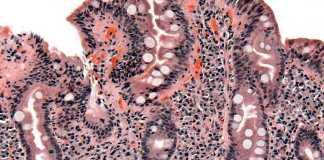 Imagen de biopsia de intestino delgado afectado de celiaquía