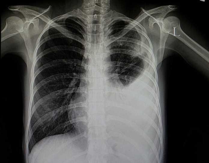 Neumonía: Imagen de Radiografía torácica