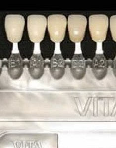 Step determine the category of porcelain veneers you would like also choosing  shade for your david eshom dds rh eshomdds