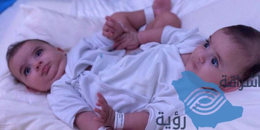 والد التوأم السيامي الليبي: الأطباء نصحونا بالإجهاض بسبب التشوهات.. وهكذا تواصلت مع مركز الملك سلمان