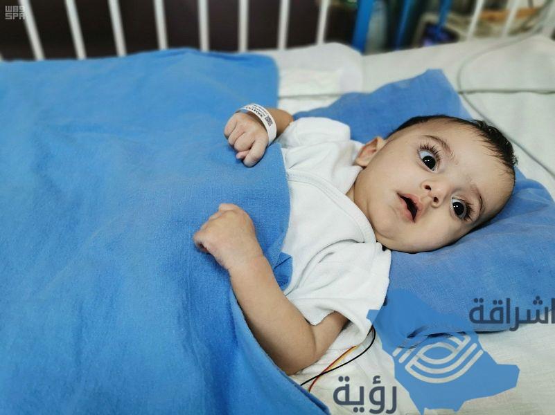 """استقرار حالة التوأمين السياميين الليبيين """"أحمد"""" و""""محمد"""" وخروجهما من العناية المركزة"""