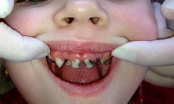 Почему гниют зубы и что можно сделать чтобы их спасти