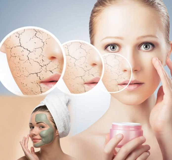 ¿Es normal - Psoriasis tratamientos para la piel reseca