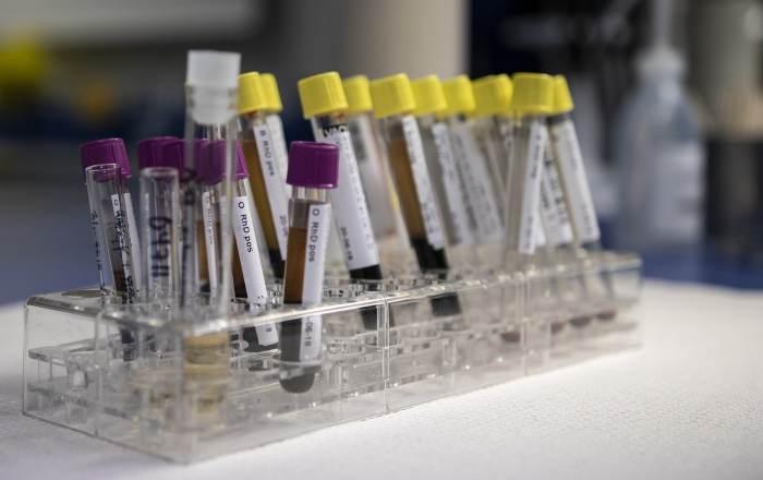 Los laboratorios ya pueden hacer pruebas de COVID-19 sin orden médica