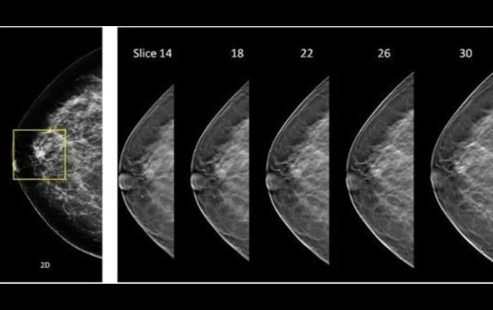 Tomosíntesis revoluciona la mamografía