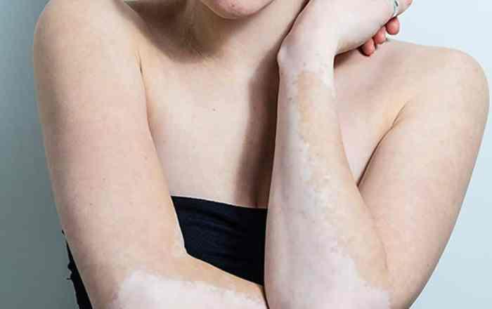 Desmontando mitos sobre el albinismo