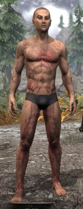 Thrall's Arterial Map Body Marks - Male Front