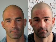 bald men head tattoos