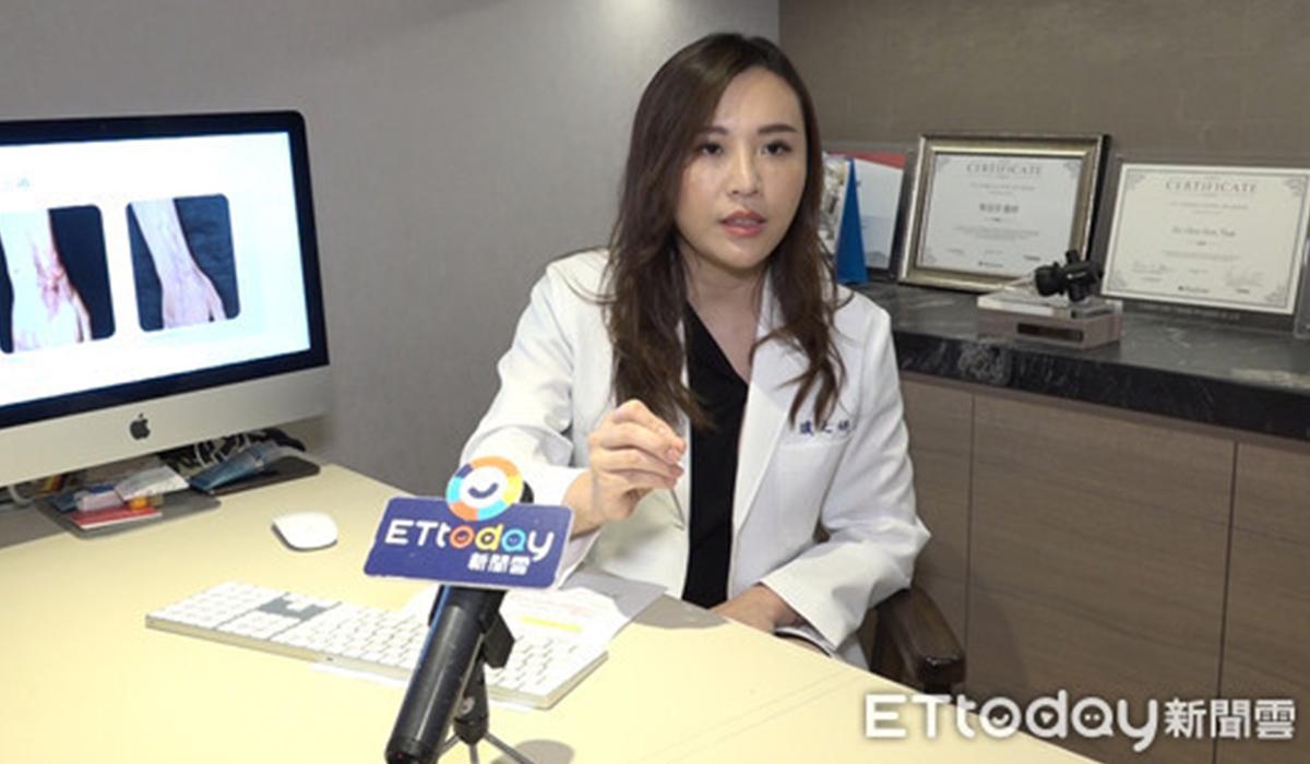 【ET TODAY專訪】疤痕治療新曙光!「UP雷射」可治療燒燙傷疤