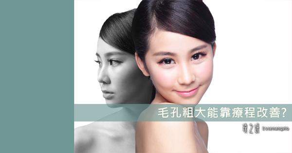 毛孔粗大能靠療程改善?
