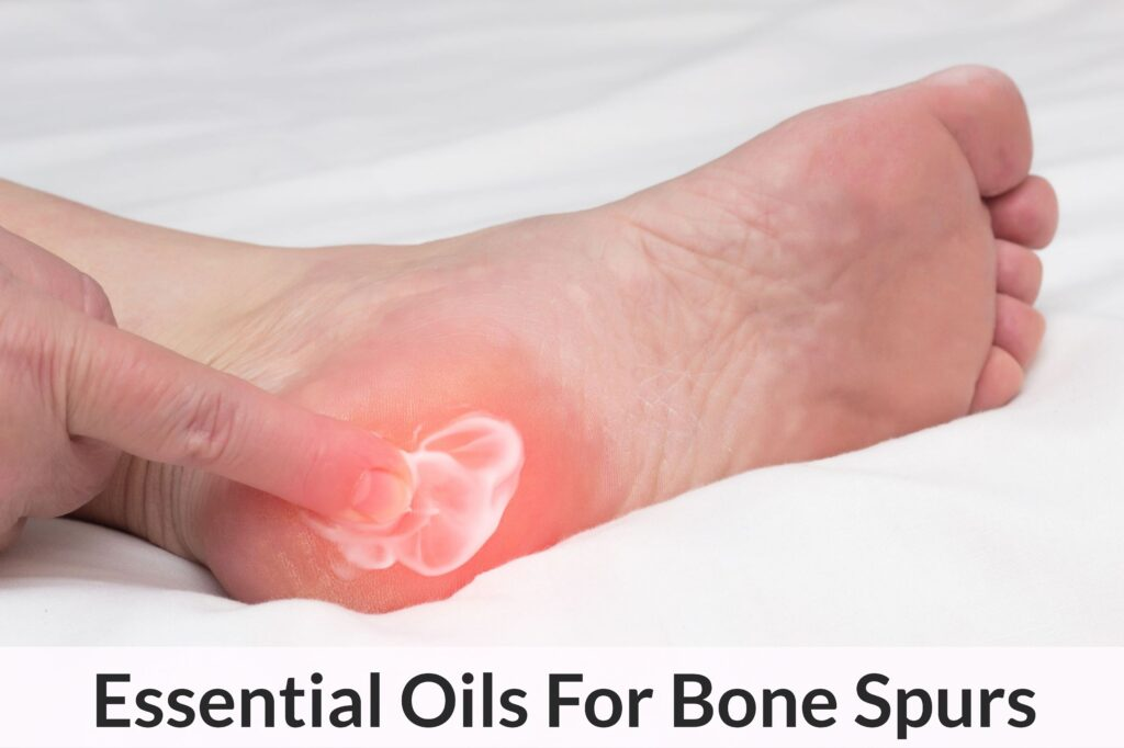 Essential Oils For Bone Spurs: When Being Porcupine Boy Doesn't Sound So Heroic Anymore Essential Oil Benefits