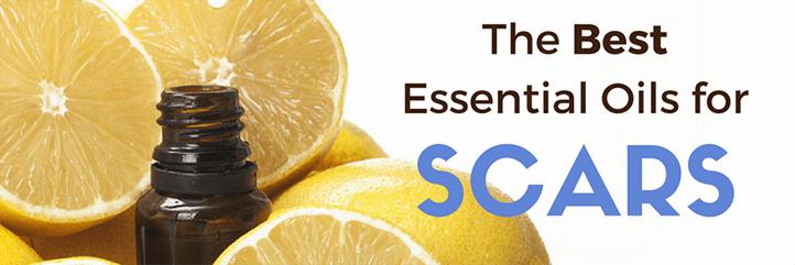 essential oils for scars, scar treatment