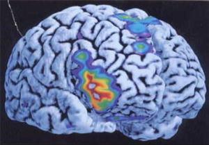 memoire remede naturel 300x209 - Remède naturel pour améliorer sa mémoire.