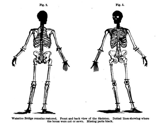 The skeleton from the 1857 Waterloo Bridge Mystery