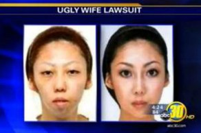 La esposa de Jian Feng, antes y después, de someterse a cirugía estética.
