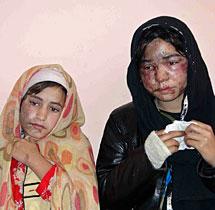 Dos de las hermanas agredidas. | Reuters