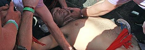 Una persona atendida después del chupinazo. | AP