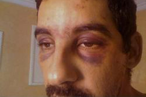Ahmed Yeddou Salem Lecuara muestra sus heridas. | Fundación Sáhara Occidental
