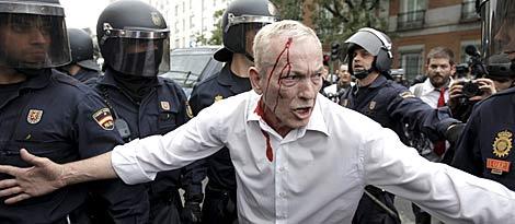 Un manifestante herido trata de apaciguar los ánimos. | Efe