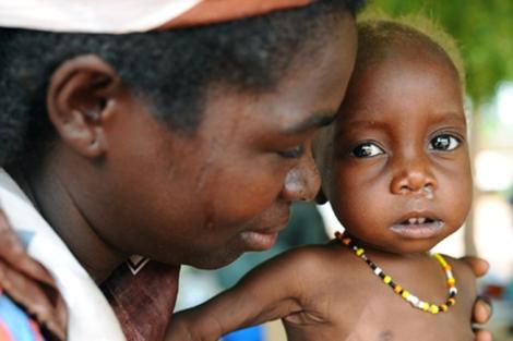 450 millones de niños en peligro de desnutrición. | Save The Children
