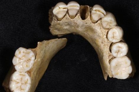 Mandíbula neandertal de Valdegoba. | UCM-ISCIII