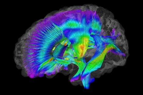 Imagen de la sustancia blanca cerebral. | Foto: Jason Wolff