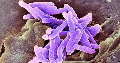Detalle del bacilo de la tuberculosis , 'Mycobacterium tuberculosis'