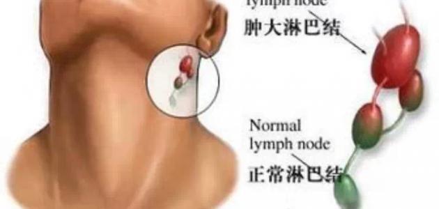 اعراض التهاب الغدد اللمفاوية إستشاري